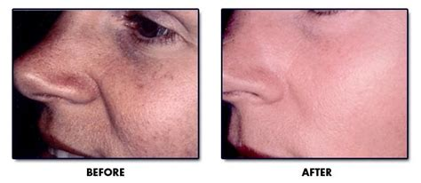chemical l in the treatment of acne picture 7
