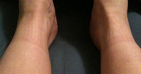 thigh chafing swollen treatment picture 3