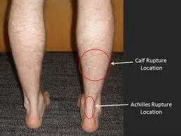 calf muscle pulls picture 17