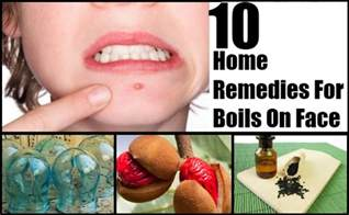 home remedy for boils picture 5