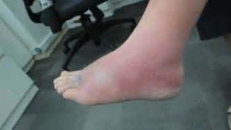 foot skin infections picture 11