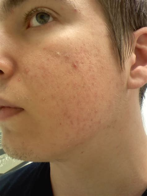 acne marks picture 9