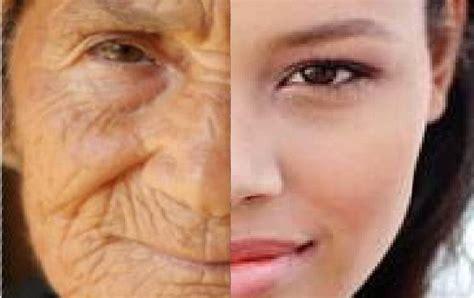 age away skin cream picture 7