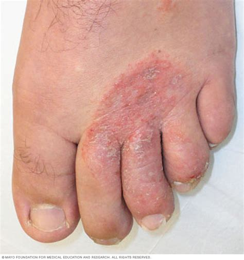 heel skin is caused by picture 11