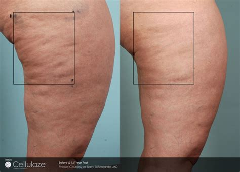northern virginia hair removal picture 3