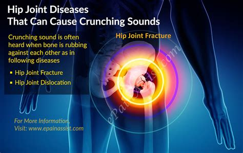 hip joint pain picture 7