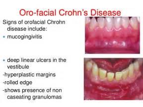 clotrimazole on lips picture 15
