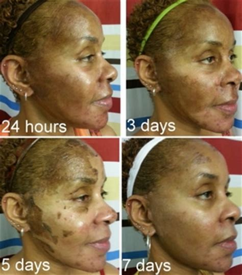 african american skin microdermabrasion picture 6