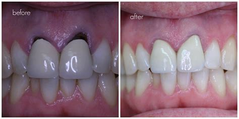 crowns on teeth picture 17