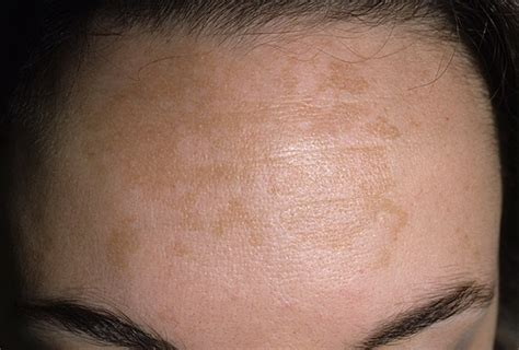 cure of skin discoloration picture 4