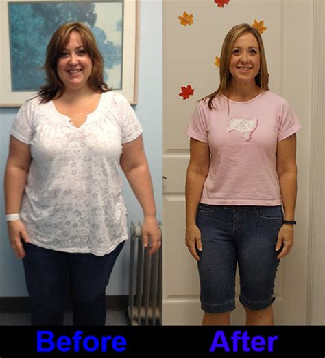 expected weight loss with the gastric band picture 1
