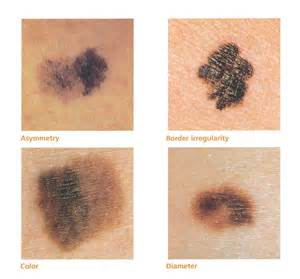 skin cancer example picture 1