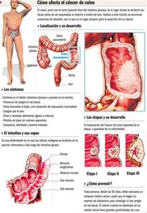 signs of gall bladder problems picture 13
