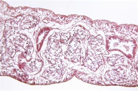 flukes in bladder picture 13