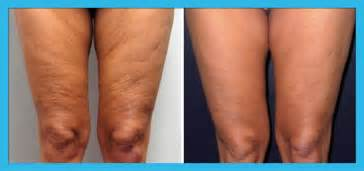 cellulite clinic picture 2