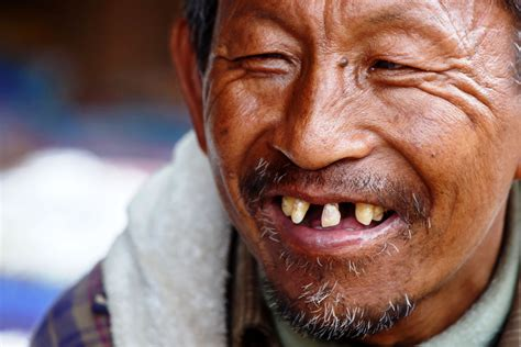 photos of people with teeth missing picture 16