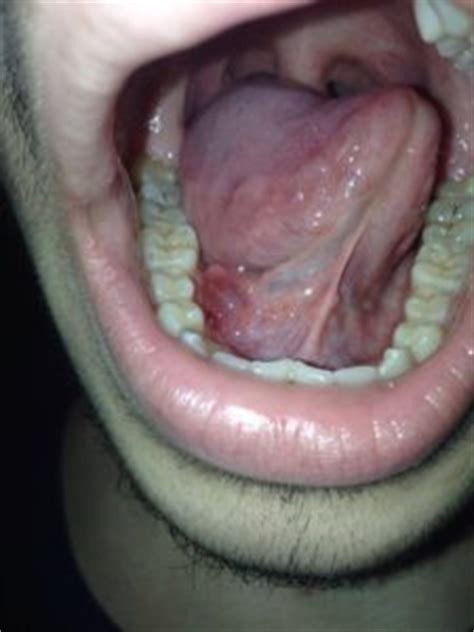 wart underneath tongue picture 11