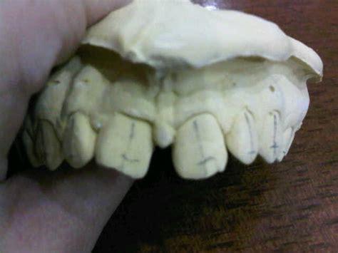 orthodontics. reason for diastema between upper anterior h picture 9