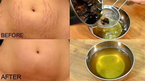boil oil com stretch marks picture 7