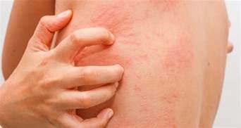 clove oil allergic skin reaction symptoms picture 9