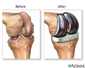 knee joint replacement success rates picture 7