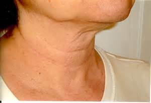 dry wrinkle skin after hysterectomy picture 13