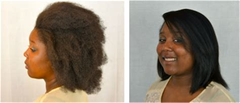 what is liscio hair system picture 13