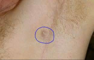 lump above penis picture 15