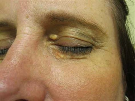 xantholasma eye cream hamdard picture 7