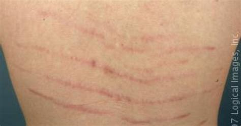stretch marks lifting weights to heal them picture 18