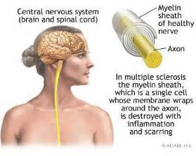 benefits of alfalfa with multiple sclerosis treatment picture 7