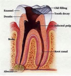 tooth pain nerve inflammation picture 14