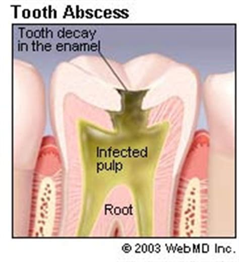 abcessed teeth and neck pain picture 14
