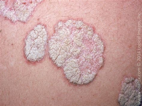 brown spots on skin picture 7