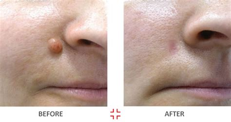 face warts removal picture 11
