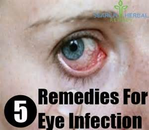 Chinese herbal remedy for eye infection picture 10