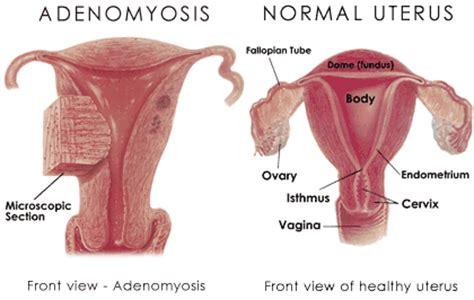 adenomyomatosis treatment picture 11
