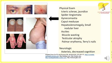chronic liver disease picture 13