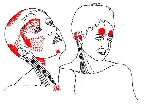 pain relief for ear ache picture 14