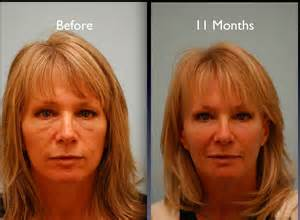 luminus ipl and fat loss picture 3