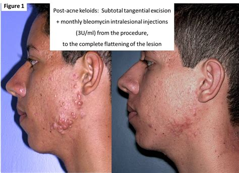 co2 laser treatment for acne picture 19