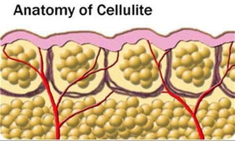 can e coli foods that cause cellulite picture 9