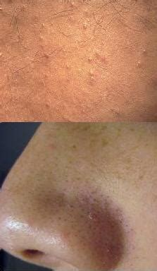 clear pores of blackheads picture 3