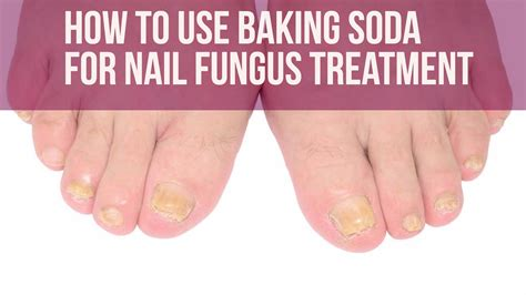 what to use for nail fungus picture 11