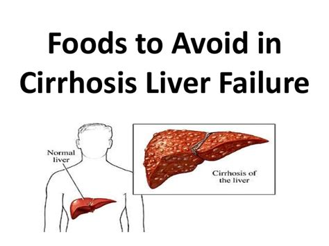 what to avoid for damaged liver picture 2