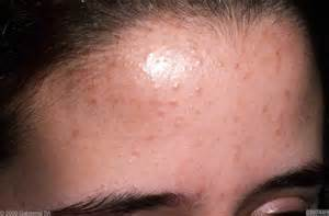 yeast infection and folliculitis picture 9