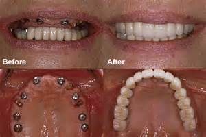 after radiation teeth implants picture 11