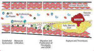 natural supplement to remove atherosclerotic plaque formation picture 2