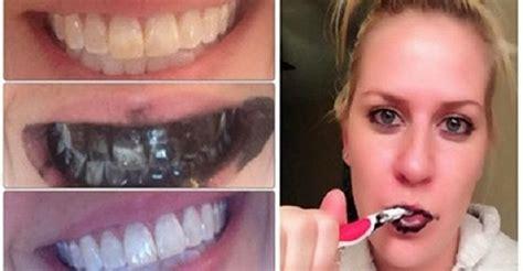 california whiten teeth picture 5