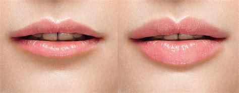freeze lip plumper picture 7